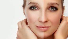 صابون سفید کننده پوست